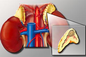 Феохромоцитома - опухоль надпочечников