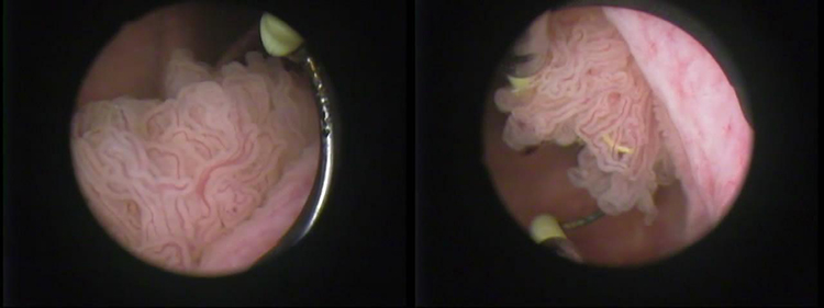 Резекция стенки мочевого пузыря при раковых опухолях