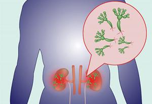 Пиелонефрит - воспаление почек
