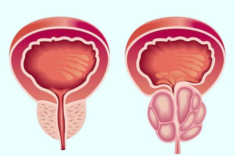 стриктура мочевого пузыря