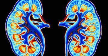 нефротический и нефритический синдром